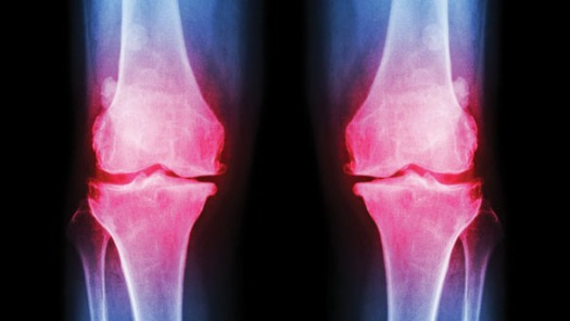 Osteoarthritis_low res