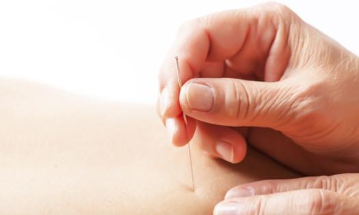 Acupuncture shutterstock_233138302